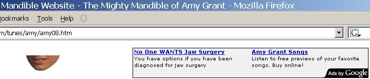 No One WANTS Jaw Surgery